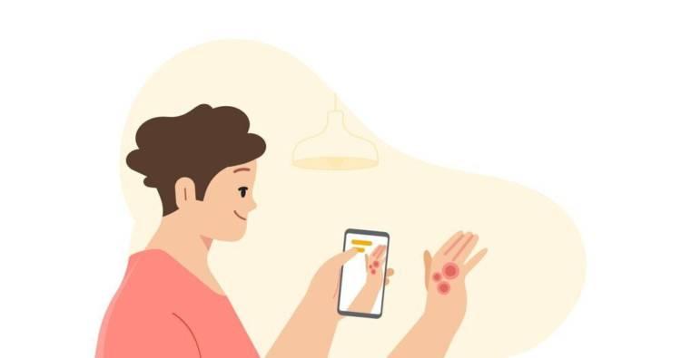 Смартфоны смогут распознавать заболевания кожи